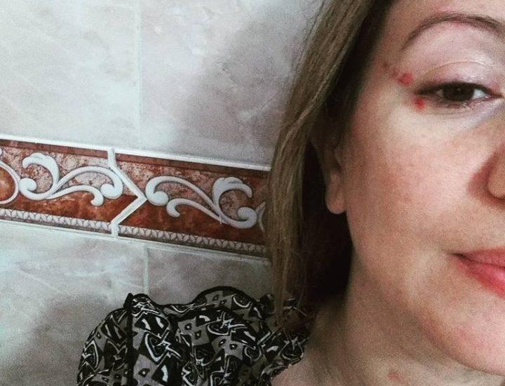 Mon ex-mari me frappe sous le regard complaisant de l'Etat