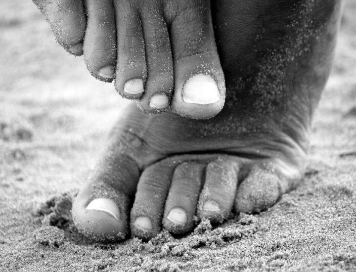 Se débarrasser des mycoses du pied naturellement